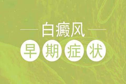 白癜风症状访赵毅
